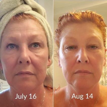 ctfo dermavie skin treatment